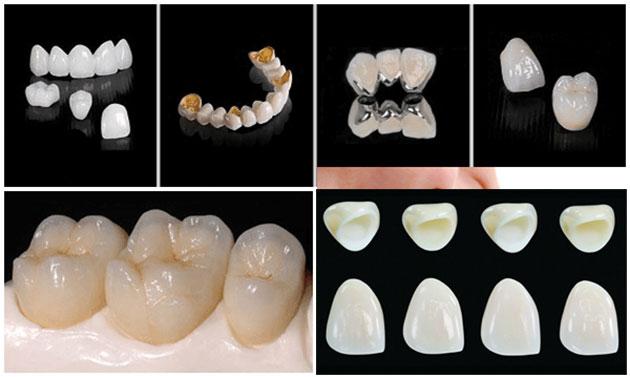 Răng Cửa Thưa Dài Và To Phải Làm Sao? – Nha Khoa Quốc Tế Á Châu - ảnh 8