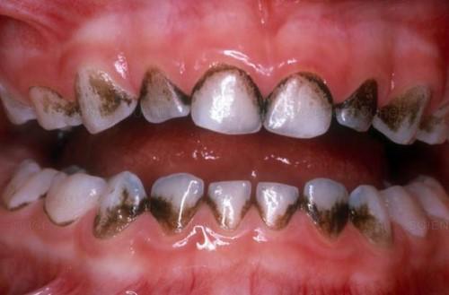 Đen Kẽ Răng: Nguyên Nhân Và Cách Điều Trị Hiệu Quả Nhất - ảnh 2