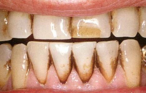Đen Kẽ Răng: Nguyên Nhân Và Cách Điều Trị Hiệu Quả Nhất - ảnh 1