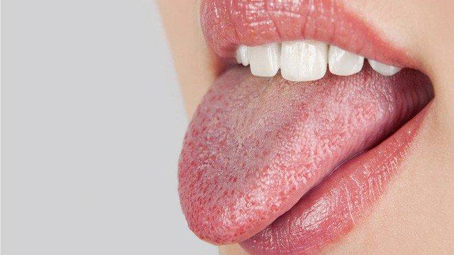 Sâu Răng Hôi Miệng: Nguyên Nhân Và Cách Điều Trị Hiệu Quả - ảnh 10