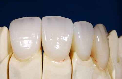 Nên Bọc Bao Nhiêu Răng Sứ Để Sở Hữu Nụ Cười Đẹp Hoàn Hảo - ảnh 2