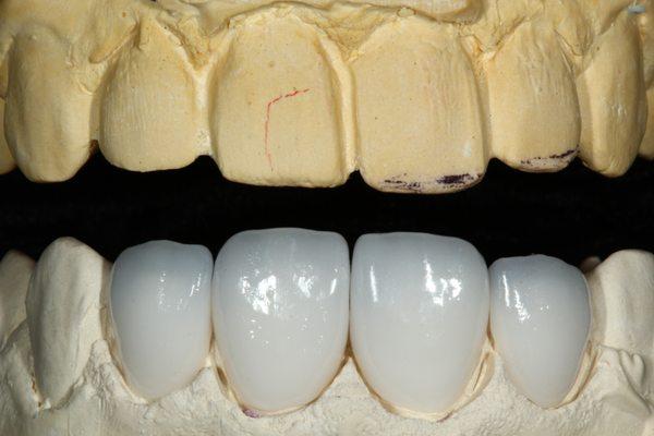 Nên Bọc Bao Nhiêu Răng Sứ Để Sở Hữu Nụ Cười Đẹp Hoàn Hảo - ảnh 1