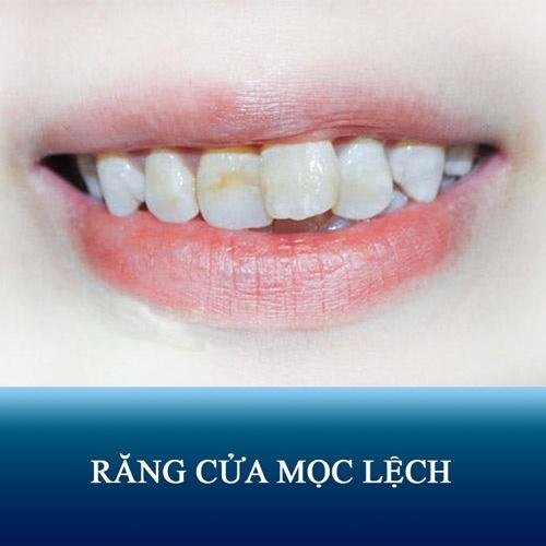 Răng Cửa Mọc Lệch: Nguyên Nhân Và Cách Xử Lý Hiệu Quả Nhất - ảnh 2
