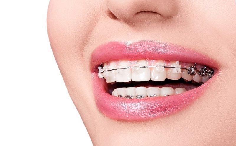Răng Cửa Mọc Lệch: Nguyên Nhân Và Cách Xử Lý Hiệu Quả Nhất - ảnh 7