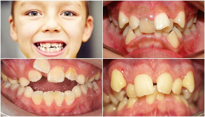 Răng Cửa Mọc Lệch: Nguyên Nhân Và Cách Xử Lý Hiệu Quả Nhất - ảnh 4
