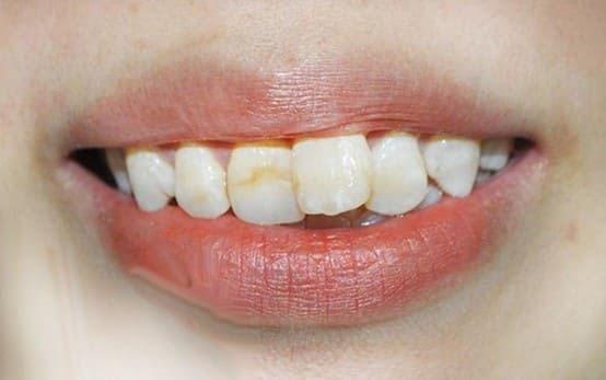 Răng Cửa Mọc Lệch: Nguyên Nhân Và Cách Xử Lý Hiệu Quả Nhất - ảnh 1