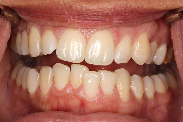 Răng Cửa Mọc Lệch: Nguyên Nhân Và Cách Xử Lý Hiệu Quả Nhất - ảnh 6