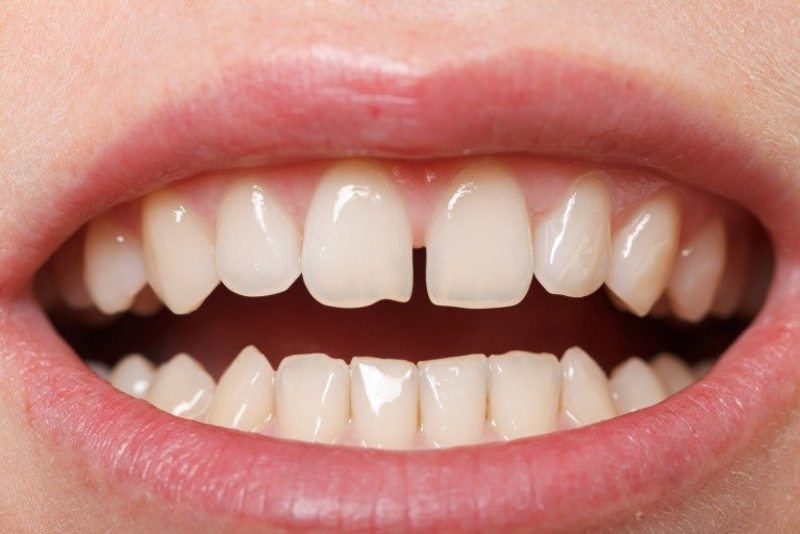 Răng Cửa Thưa Dài Và To Phải Làm Sao? – Nha Khoa Quốc Tế Á Châu - ảnh 1