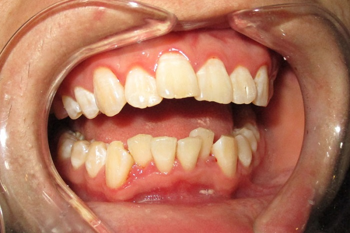 Răng Cửa Mọc Lệch: Nguyên Nhân Và Cách Xử Lý Hiệu Quả Nhất - ảnh 3