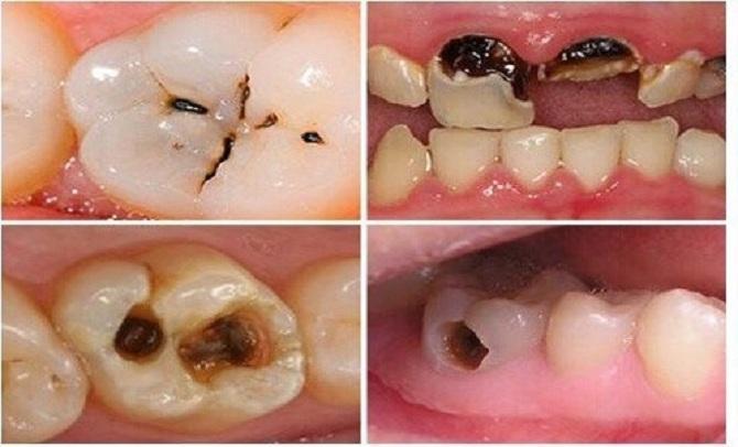 Sâu Răng Hôi Miệng: Nguyên Nhân Và Cách Điều Trị Hiệu Quả - ảnh 2