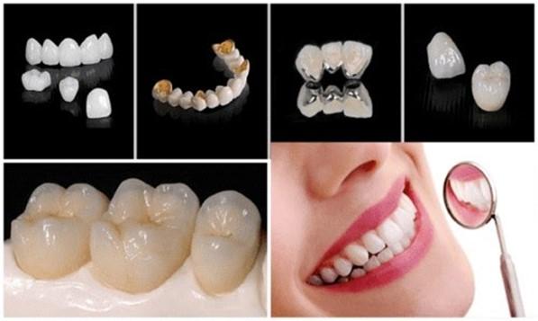 Nên Bọc Bao Nhiêu Răng Sứ Để Sở Hữu Nụ Cười Đẹp Hoàn Hảo - ảnh 6