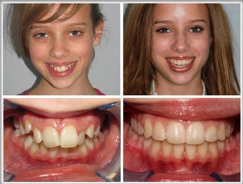 Răng Cửa Mọc Lệch: Nguyên Nhân Và Cách Xử Lý Hiệu Quả Nhất - ảnh 10