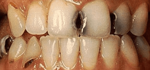 Sưng Lợi Răng Cửa: Nguyên Nhân Và Cách Khắc Phục Hiệu Quả - ảnh 2