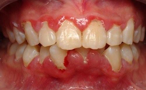 Sưng Lợi Răng Cửa: Nguyên Nhân Và Cách Khắc Phục Hiệu Quả - ảnh 5