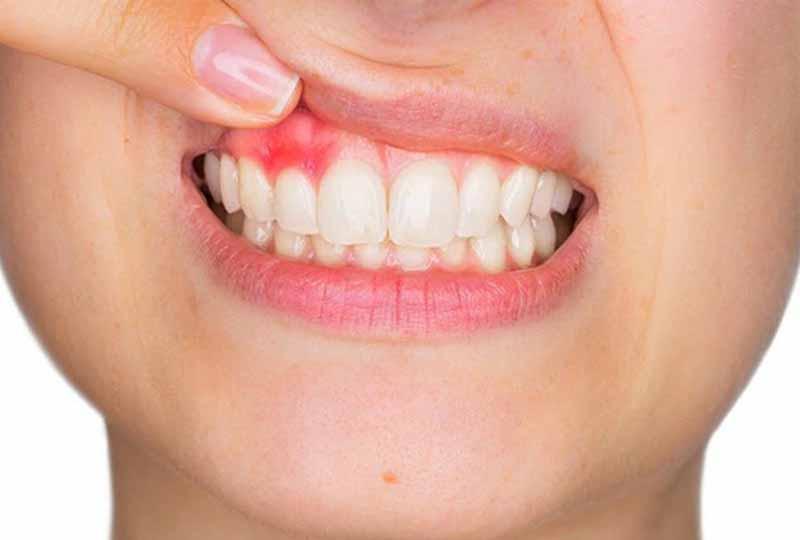 Sưng Lợi Răng Cửa: Nguyên Nhân Và Cách Khắc Phục Hiệu Quả - ảnh 3