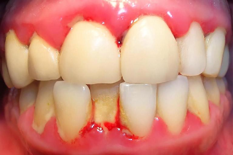 Sưng Lợi Răng Cửa: Nguyên Nhân Và Cách Khắc Phục Hiệu Quả - ảnh 1