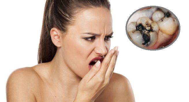 Sâu Răng Hôi Miệng: Nguyên Nhân Và Cách Điều Trị Hiệu Quả - ảnh 3
