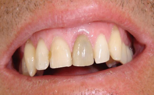 Sưng Lợi Răng Cửa: Nguyên Nhân Và Cách Khắc Phục Hiệu Quả - ảnh 4